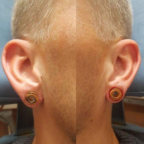 Strecth piercinger store huller i øreflip